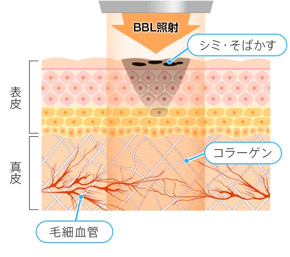 BBLによるシミ、そばかす、赤ら顔などの治療の仕組み・治療中