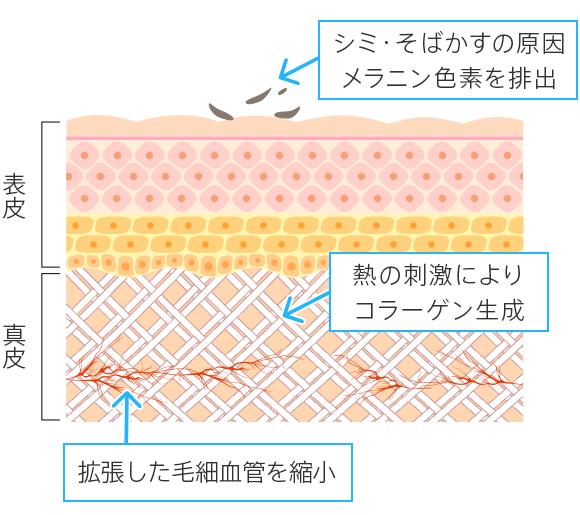 BBLによるシミ、そばかす、赤ら顔などの治療の仕組み・治療後