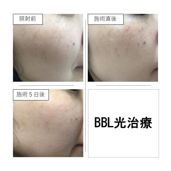 BBL光治療の症例